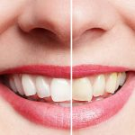 best way to whiten teeth